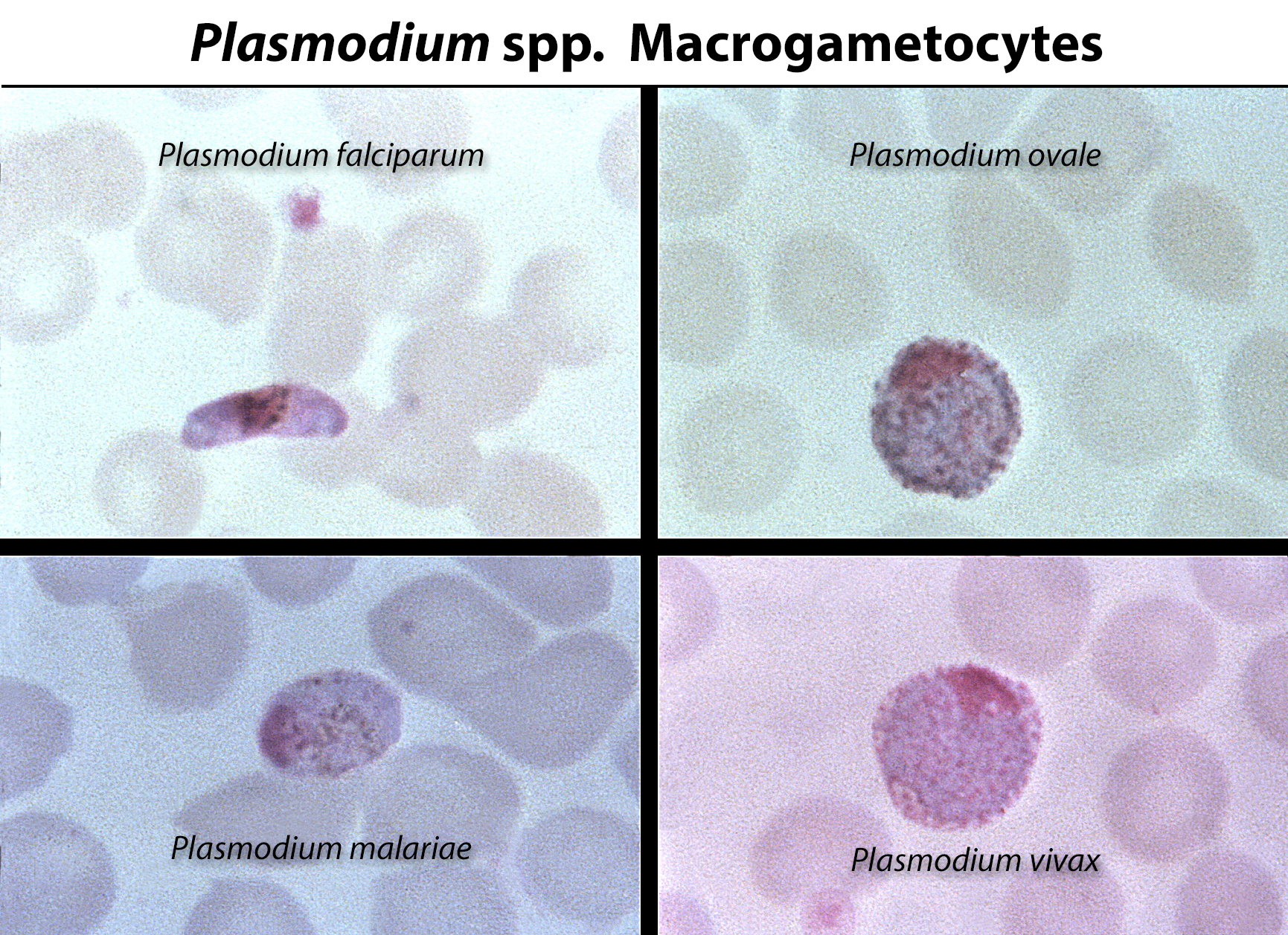 Malaria parasite micrographs